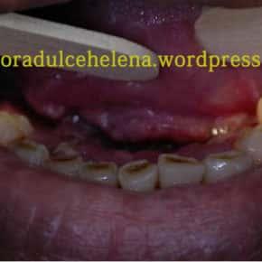 Carcinoma epidermoide/Câncer em boca/ Câncer