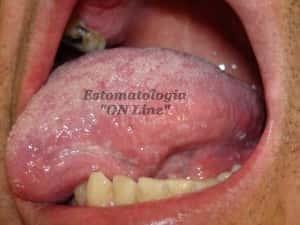 Leucoplasia em AIDS