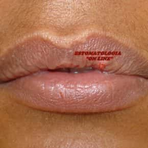 HPV BUCAL / PAPILOMA VÍRUS HUMANO