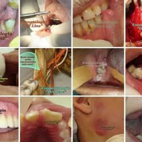Doenças bucais diagnosticadas em consultório odontológico